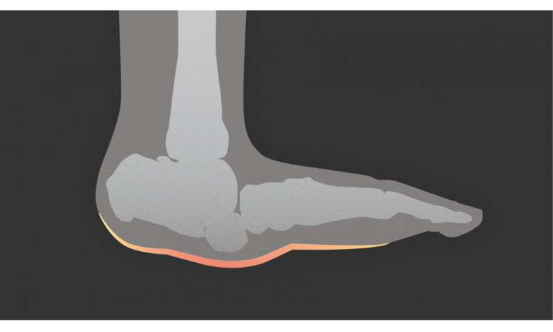 Study: Two-thirds of clinicians lack knowledge of diabetes-related foot complication