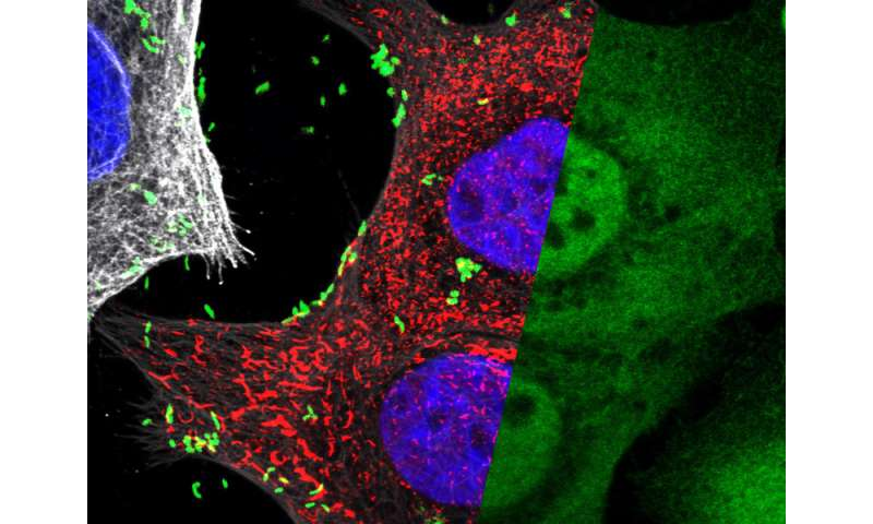 Sugar molecule helps stomach cells to differentiate between good and bad bugs