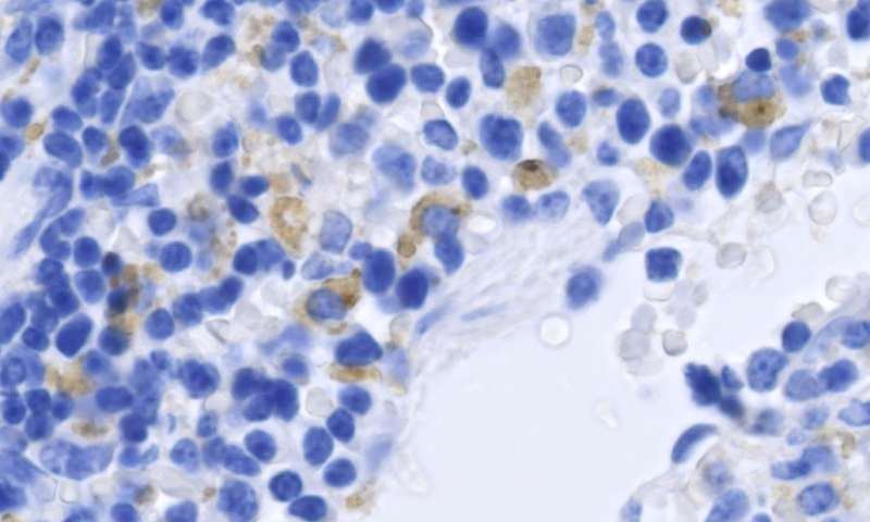 T cells join the fight against Zika