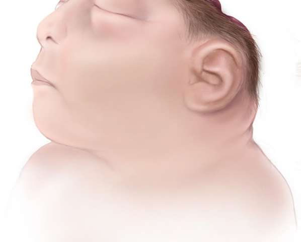 The AHCA and anencephaly