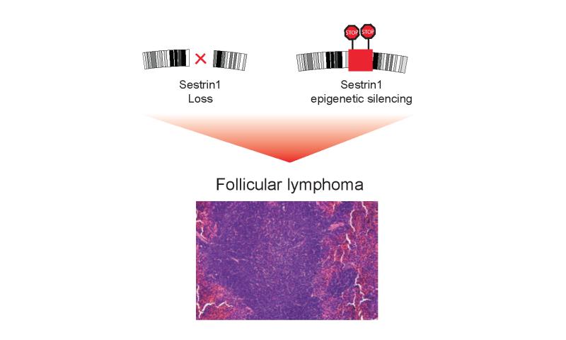 The gene behind follicular lymphoma