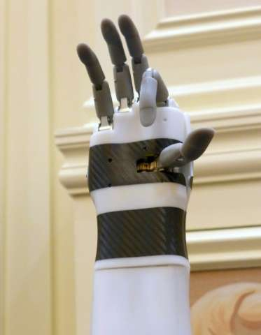 """The """"prosthetic hand"""" from BrainRobotics, controlled by signals sent from the residual muscles on an amputee's limb, i"""