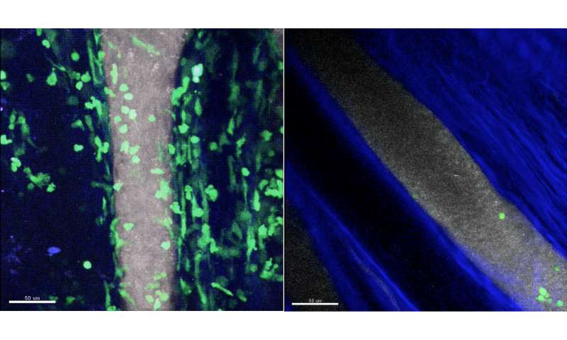 Tracking movement of immune cells identifies key first steps in inflammatory arthritis