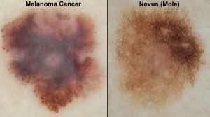 Using computers to aid melanoma detection