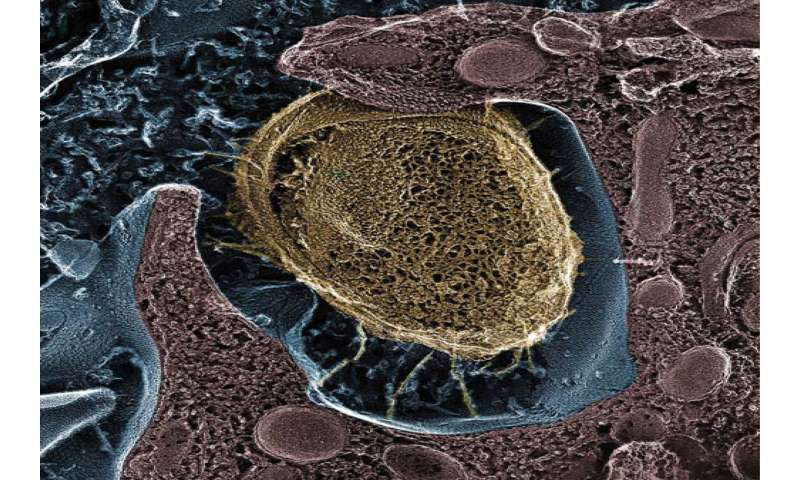 UTI treatment reduces E. coli, may offer alternative to antibiotics