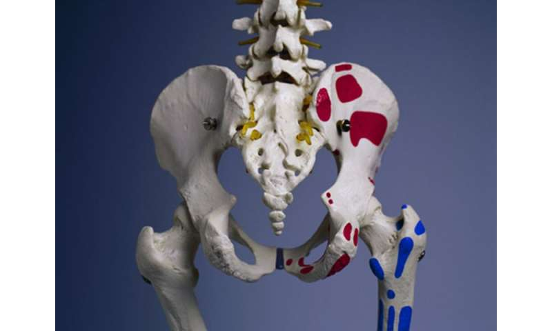 Vitamin B<sub>6</sub> linked to increased risk of hip fracture
