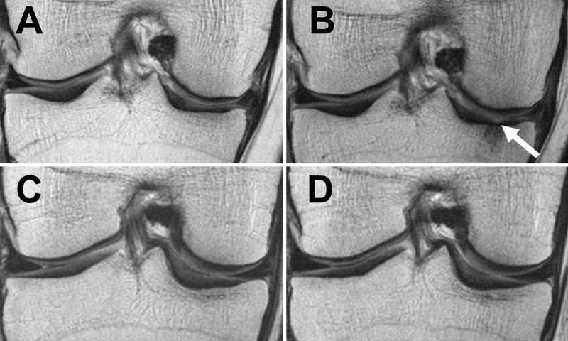 Weight loss can slow down knee joint degeneration