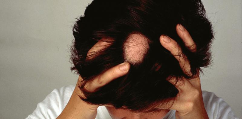 ¿Qué causa la alopecia areata y se puede tratar este tipo de caída del cabello?