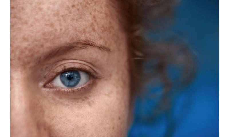 Are redheads with blue eyes really going extinct?