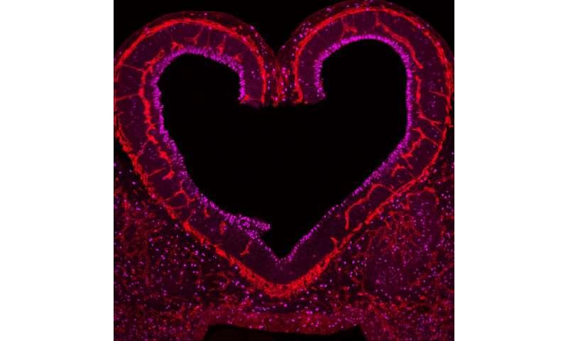 Blood vessels instruct brain development