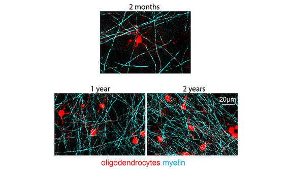 Brain's 'insulation' continues to form throughout life