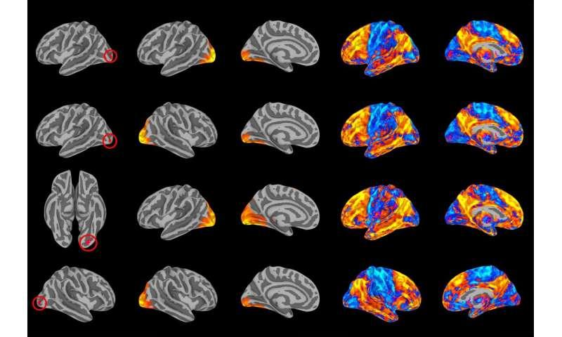 Breakdown of brain's visual networks linked to mental illness