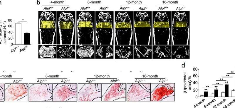 Cell biology: the role of the alkaline phosphatase (Alpl) gene in preventing premature bone ageing.