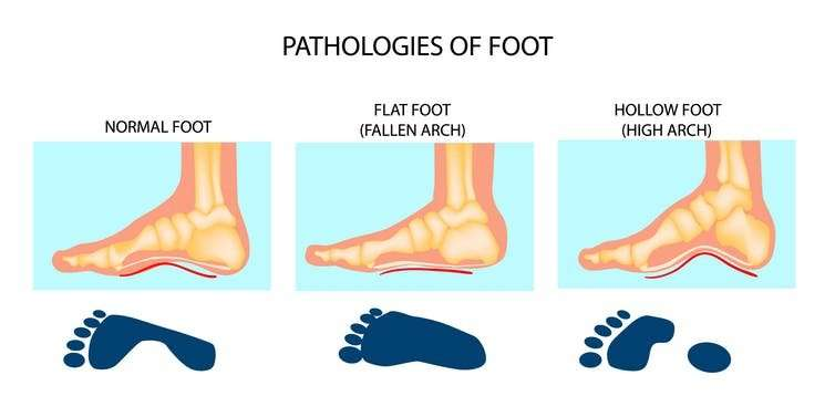 Children should spend more time barefoot to encourage a healthier foot structure