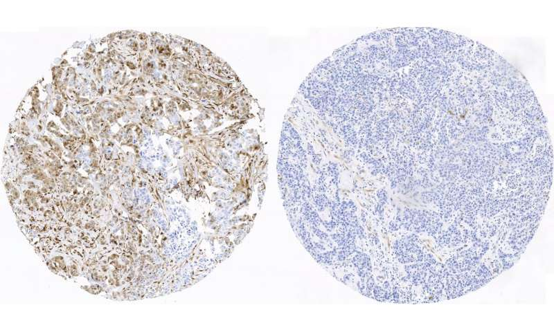 CNIO researchers find first indicators of prognosis for the most aggressive breast cancer