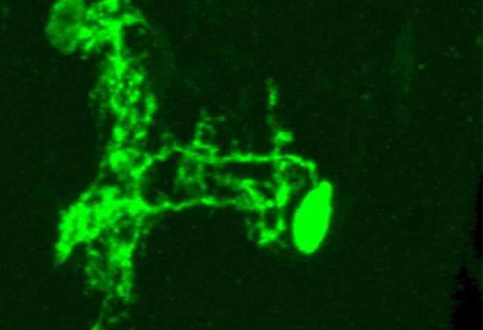Columbia scientists locate nerve cells that enable fruit flies to escape danger