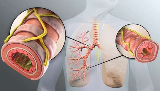 COPD patients suffer fewer respiratory problems if treated with Targeted Lung Denervation