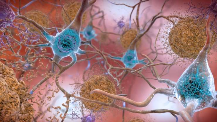 Data detectives shift suspicions in Alzheimer's to inside villain