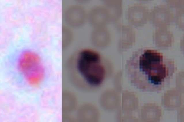 Deep learning transforms smartphone microscopes into laboratory-grade devices