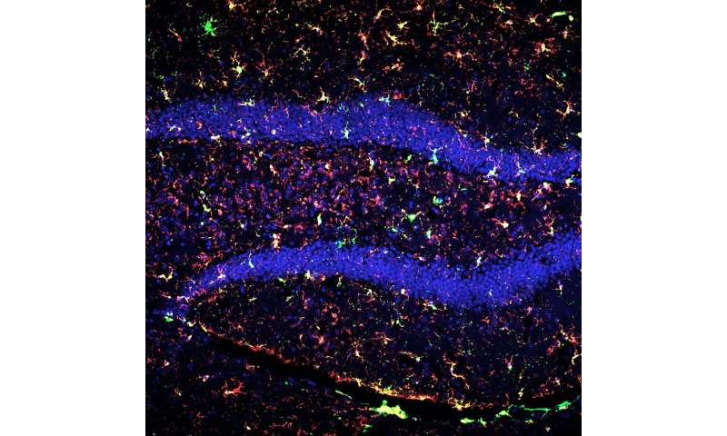 Deep space radiation treatment reboots brain's immune system