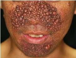 Drug to treat skin lesions in tuberous sclerosis complex approved