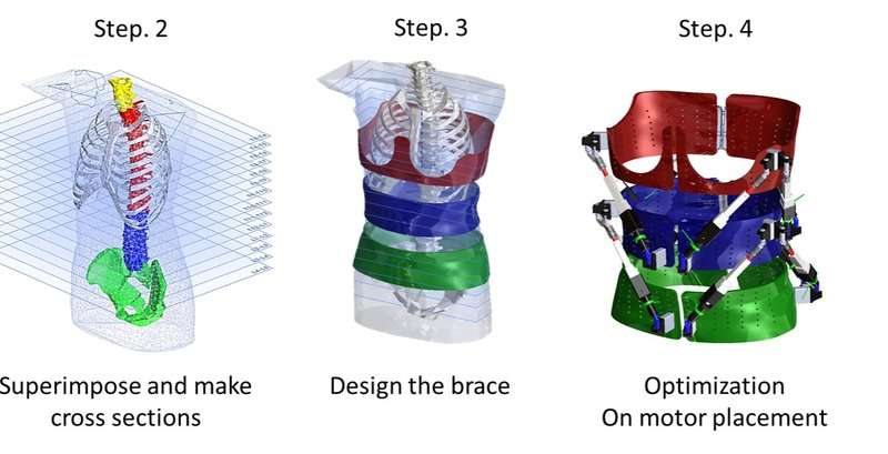 First dynamic spine brace -- robotic spine exoskeleton -- characterizes spine deformities