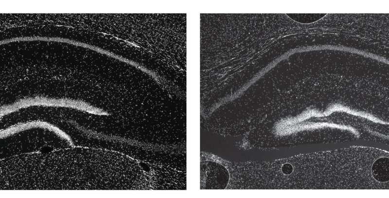 Gene enhancers important despite apparent redundancy