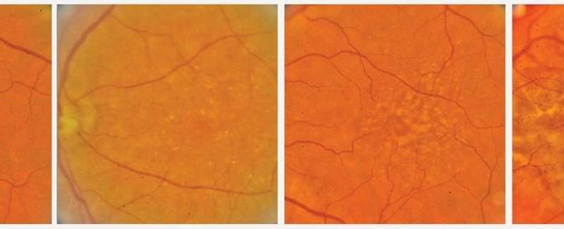 Hopkins researchers chart a course for AI-aided diagnosis of degenerative eye conditions