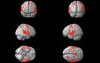 How does the brain learn categorization for sounds? The same way it does for images
