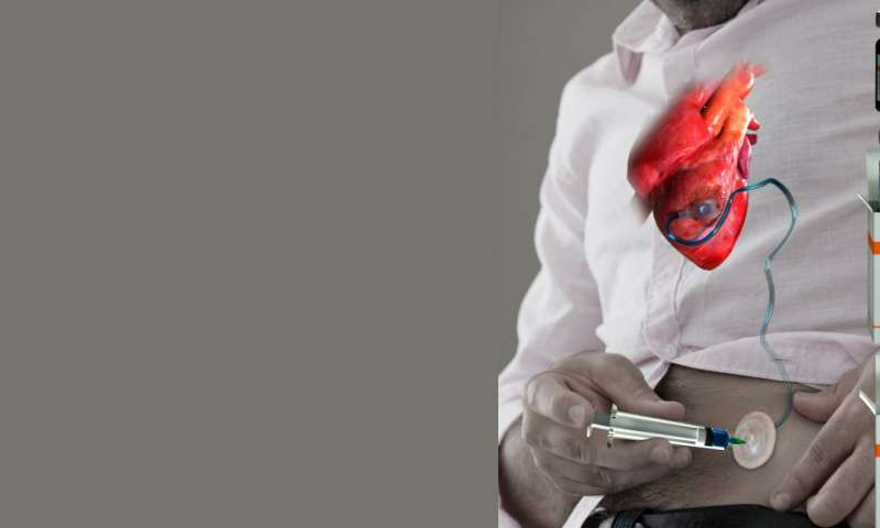 Implantable device delivers drugs straight to the heart
