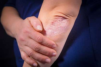 Insight into potential new strategy to target skin diseases like psorias