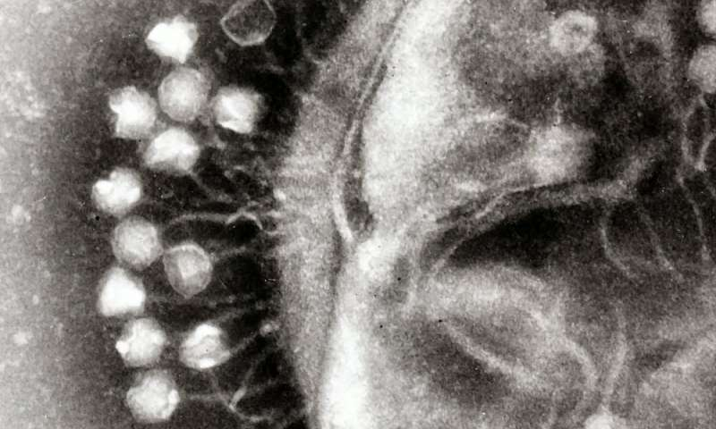 Meet the trillions of viruses that make up your virome