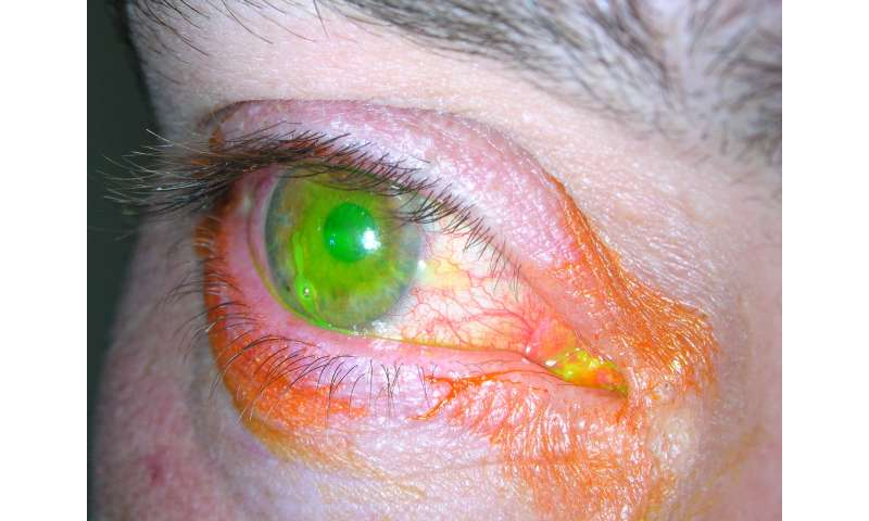 New contact lens to treat eye injuries