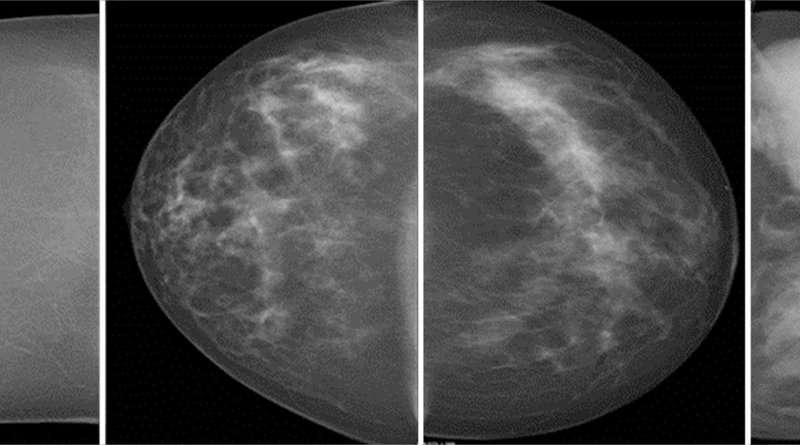 New study confirms higher cancer rate in women with dense breast tissue