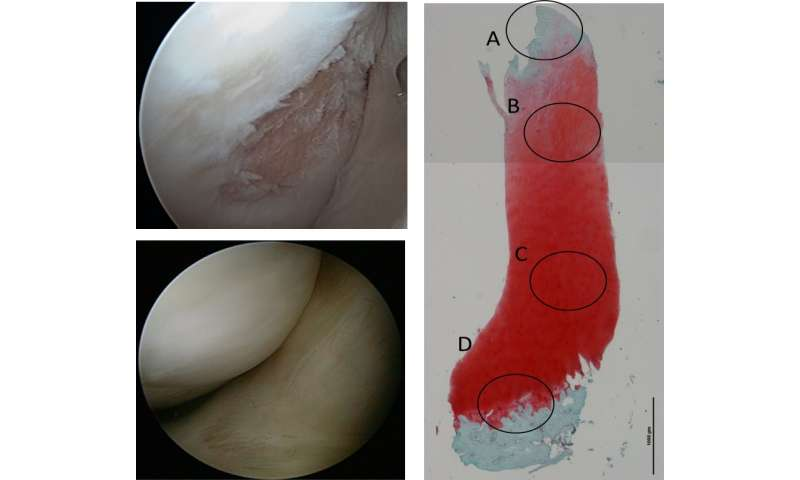 Phase III clinical trials for stem cell-based cartilage regeneration therapy have started