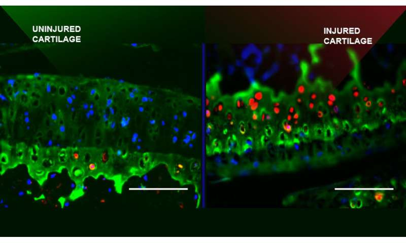 Protein that prevents further cartilage damage