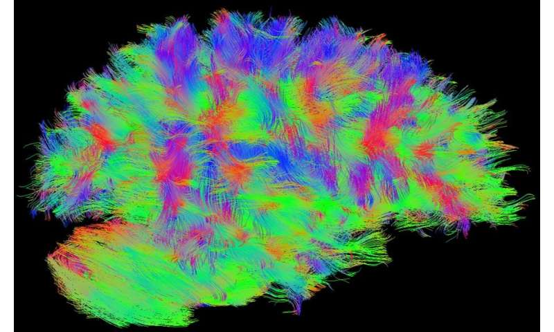 'Tic-tac-toe'-themed MRI technology easy win for neurological disease researchers