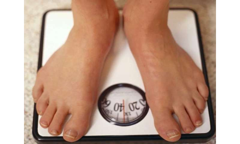 Weight-loss surgery may raise gallstone riak: study