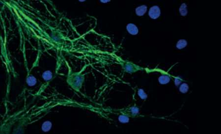 Scientists unravel molecular mechanisms of Parkinson's disease