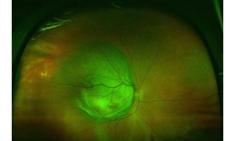 Scientists identify weak point in deadly eye melanoma