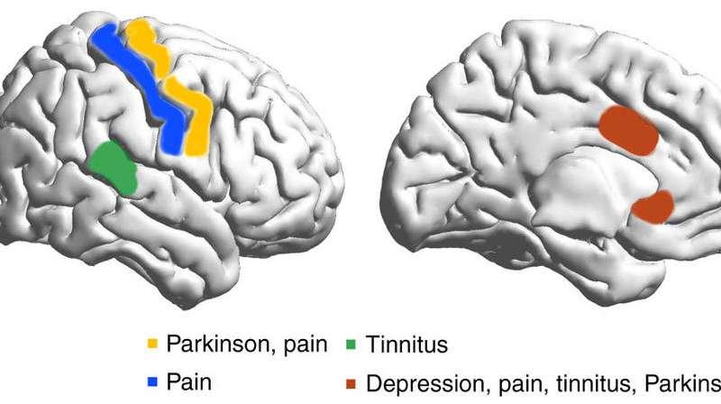 Study suggests brainwave link between disparate disorders