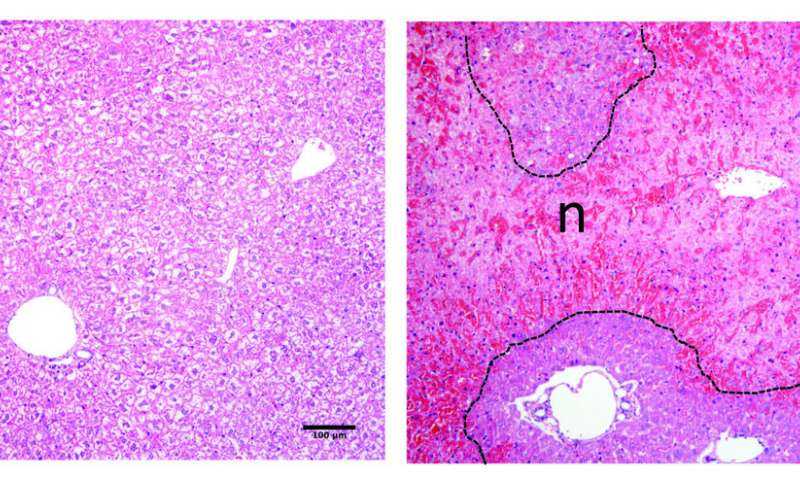 Researchers discover molecule involved in the repair of liver wounds