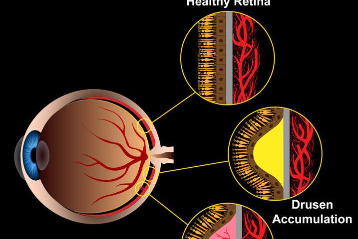 Researchers develop new devices to test retinal cells