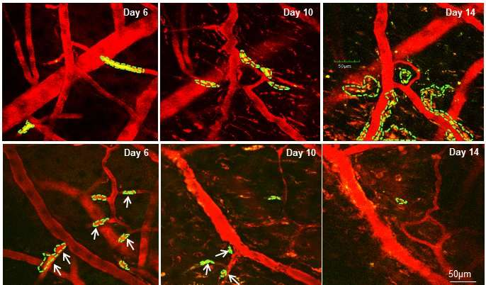 Researchers identify compound to prevent breast cancer cells from activating in brain