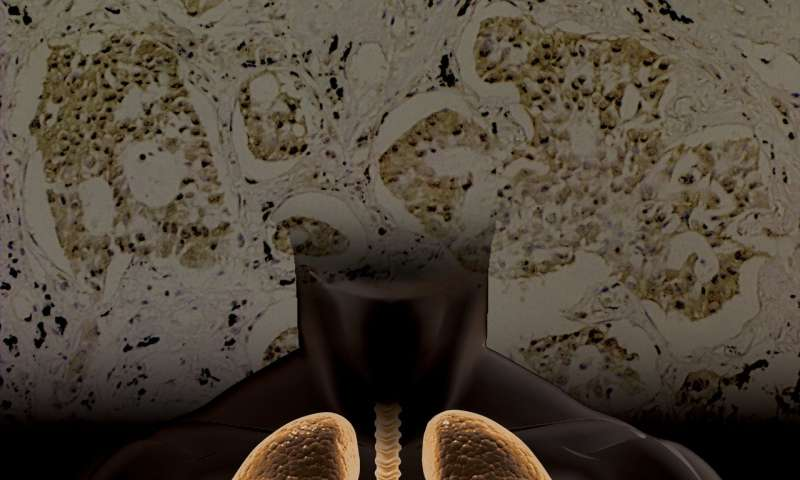 Study suggests molecular imaging strategy for determining molecular classifications of NSCLC