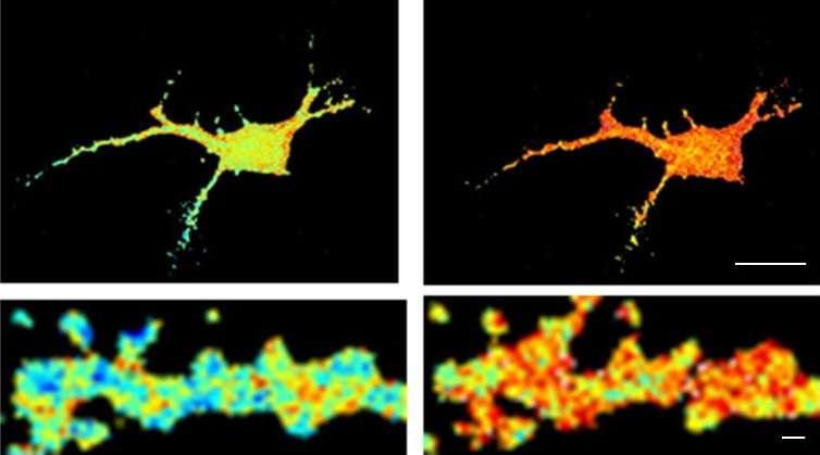 Alzheimer's disease: How amyloid aggregates alter neuronal function
