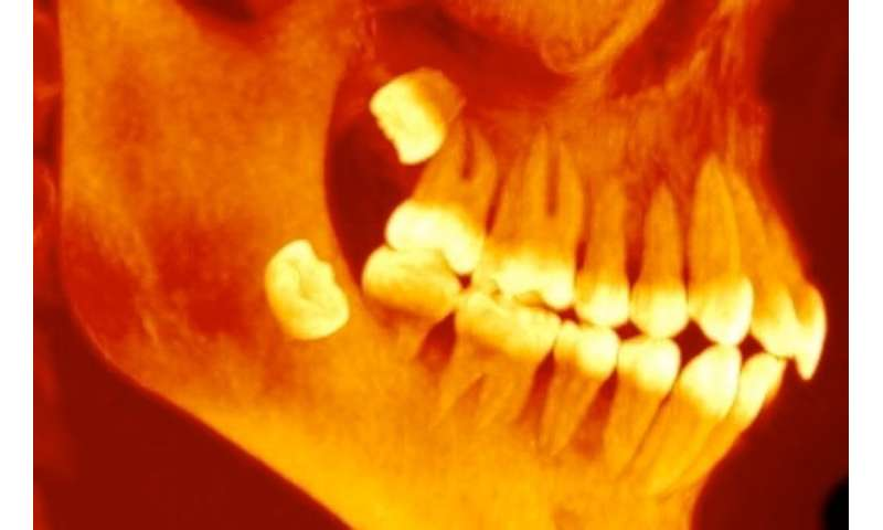 Bad molars? The origins of wisdom teeth