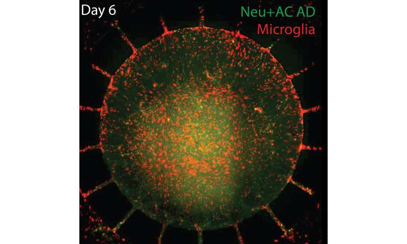Microfluidic system incorporates neuroinflammation into 'Alzheimer's in a dish' model