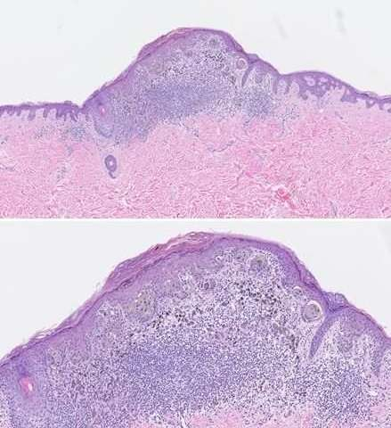 New guidelines may slightly increase reliability, accuracy of melanoma diagnoses