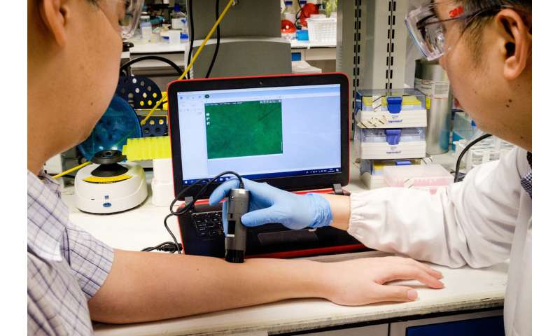 New nanoparticles help to detect serious scarring of wounds
